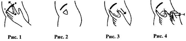 Мальтофер раствор для внутримышечного введения